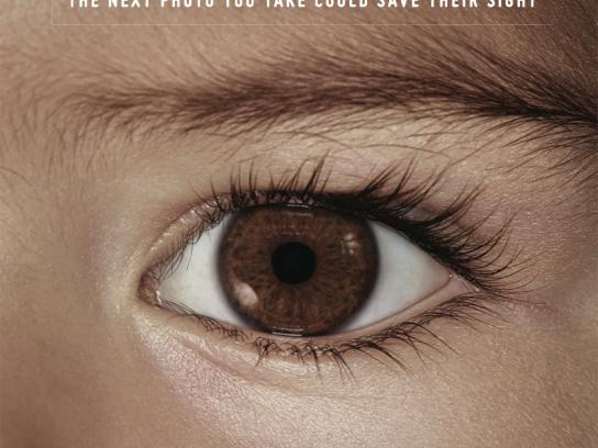 Childhood Eye Cancer Trust Outdoor Ad -  Eye, 1