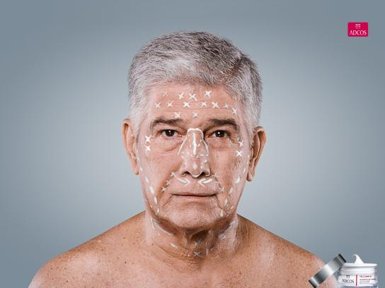 Adcos Print Ad -  Cream surgery, 1