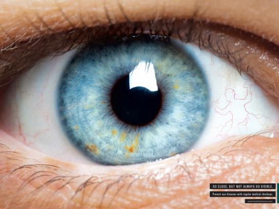 Hospital de Olhos do Paraná Print Ad -  Eye, 3
