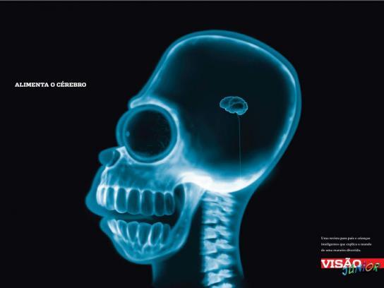 X-Ray, 1