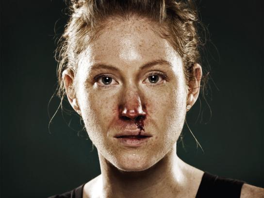 Running Free Print Ad -  Broken nose