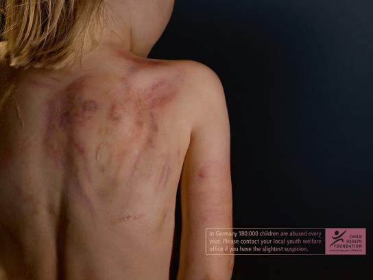 Child Health Foundation Print Ad -  The Scream
