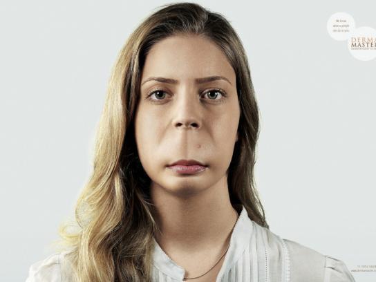 Derma Master Print Ad -  Pimple, 1