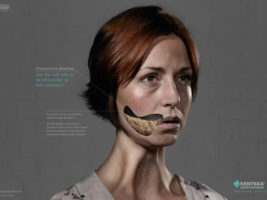 Kentera Print Ad -  Unwanted Side-Effects, Dry Mouth