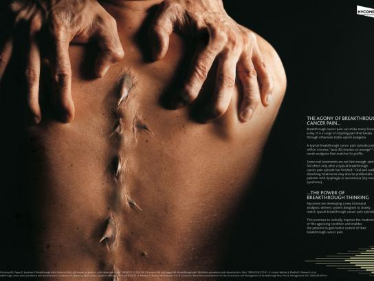 Nycomed Print Ad -  Agony, 1