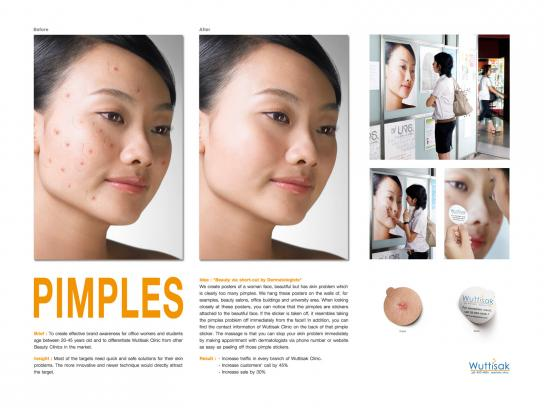 Wuttisak Clinic Ambient Ad -  Pimples