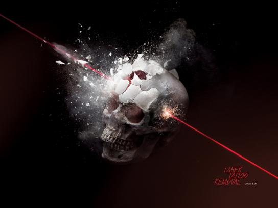 Undo-It Laser Tattoo Removal Print Ad -  Skull