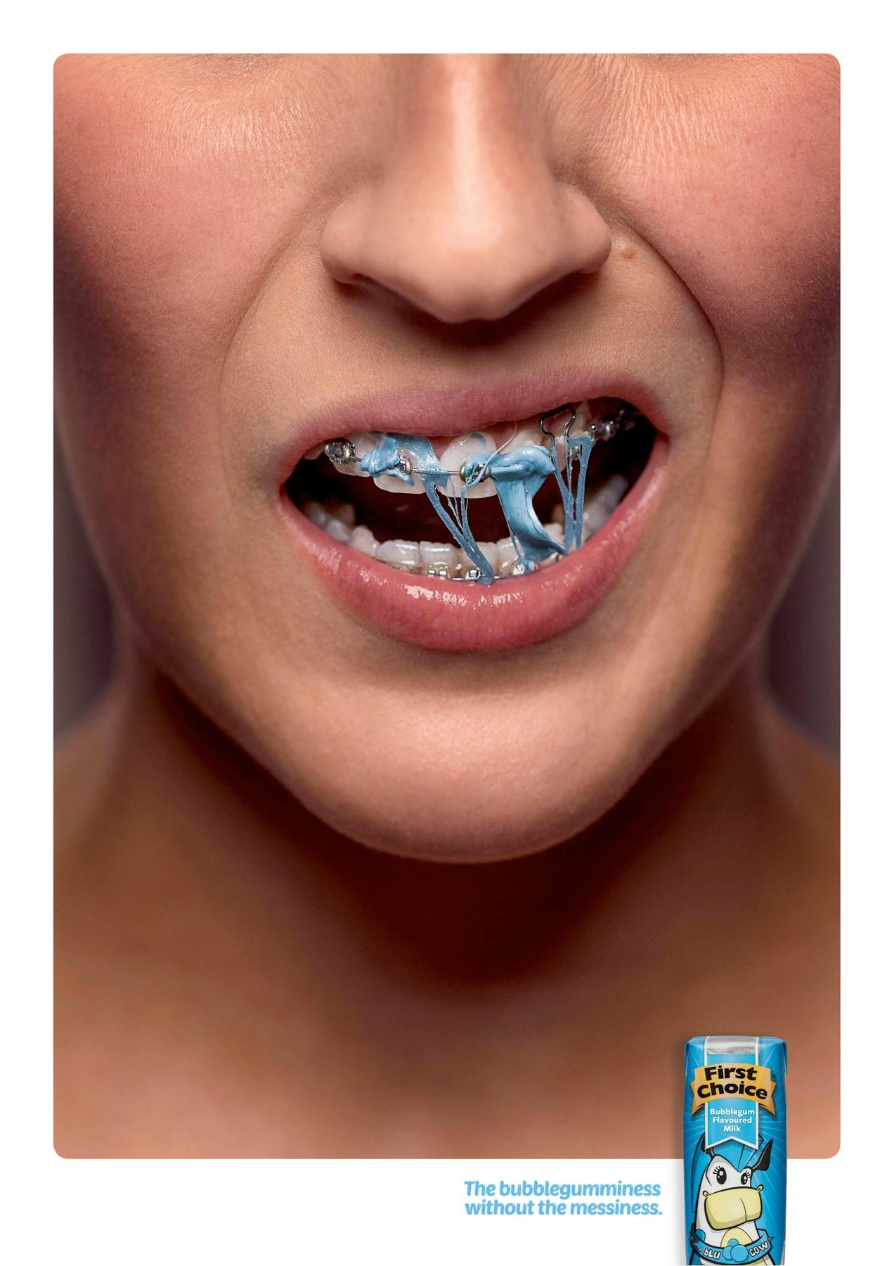 First Choice Milk Print Ad -  Braces