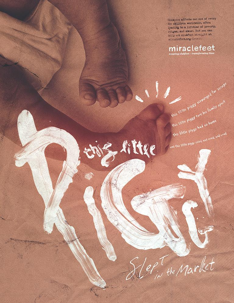 MiracleFeet Print Ad - This Little Piggy - Homeless