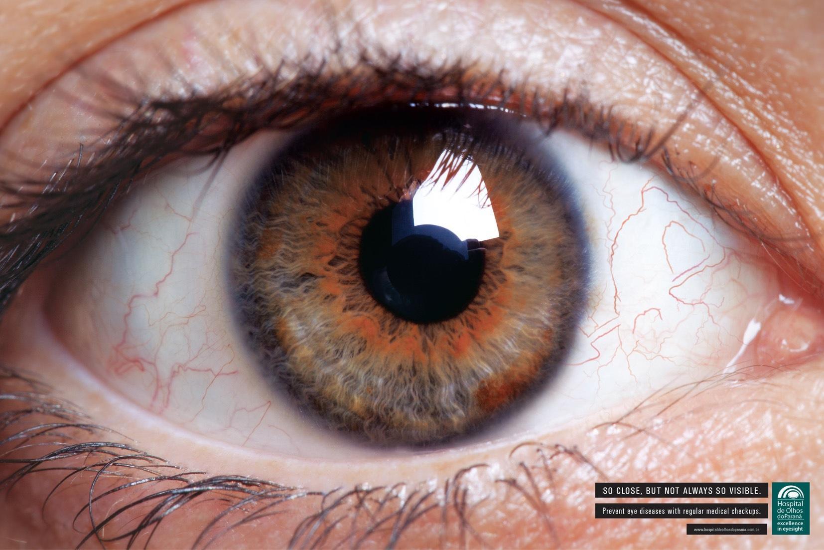 Hospital de Olhos do Paraná Print Ad -  Eye, 2