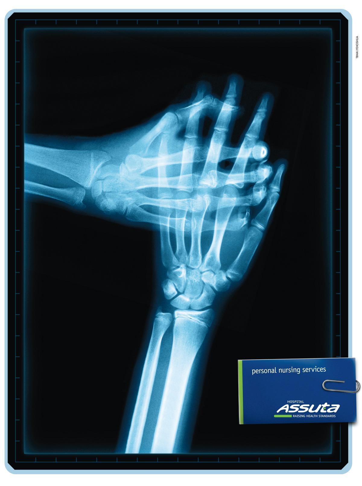 Assuta Print Ad -  X-ray