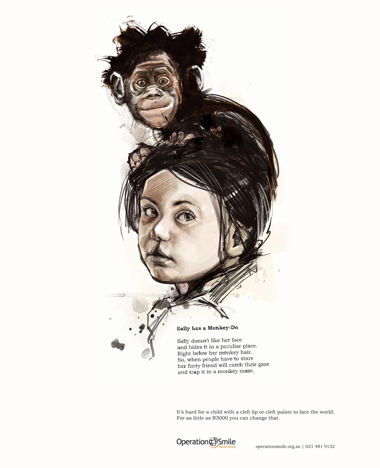 Operation Smile Print Ad -  Sally Monkey
