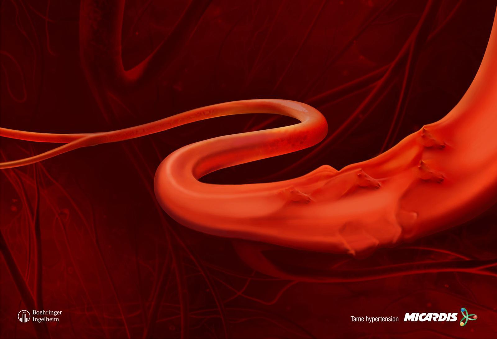 Micardis Print Ad -  Heart