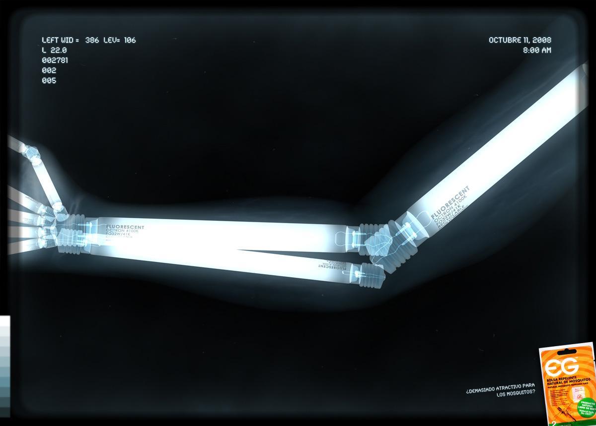 EG Repellent Print Ad -  Fluorescent arm