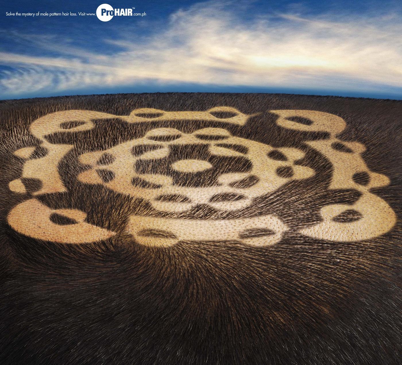 Propecia ProHair Print Ad -  Circles, 3