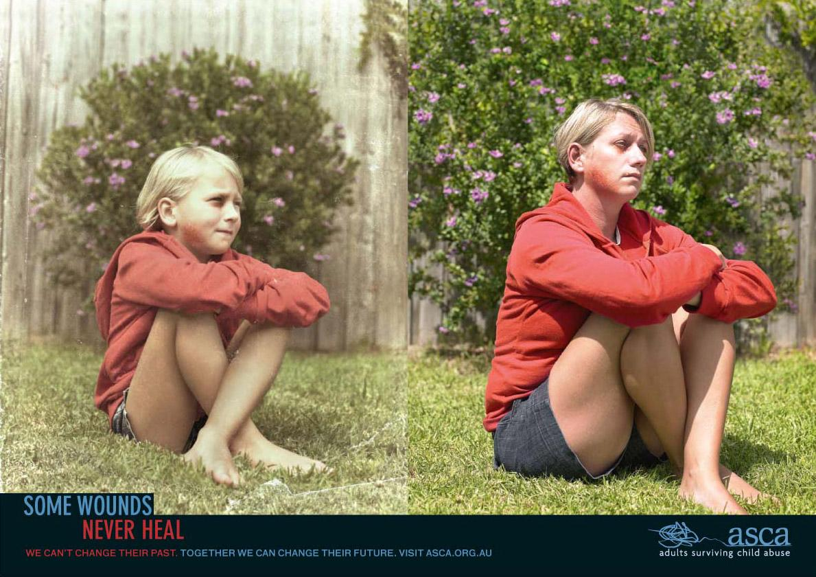 ASCA Print Ad -  Wound, 3