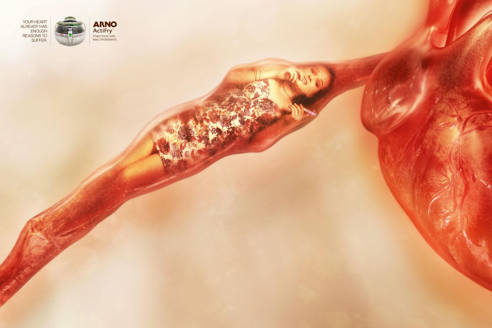 Arno Print Ad -  Clogged Arteries, Pregnant daughter