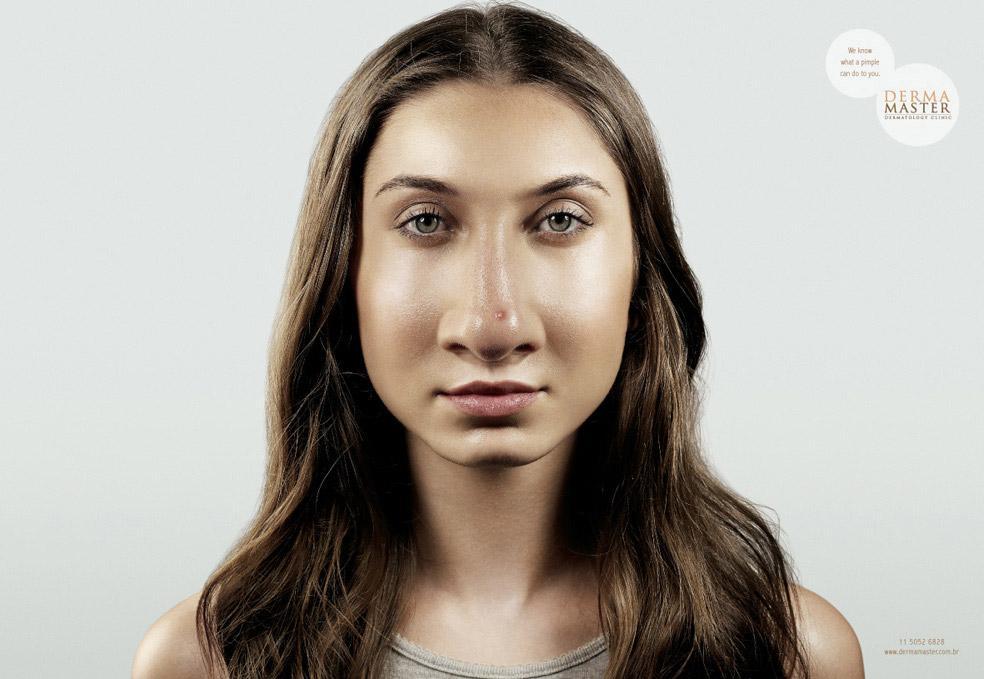 Derma Master Print Ad -  Pimple, 3