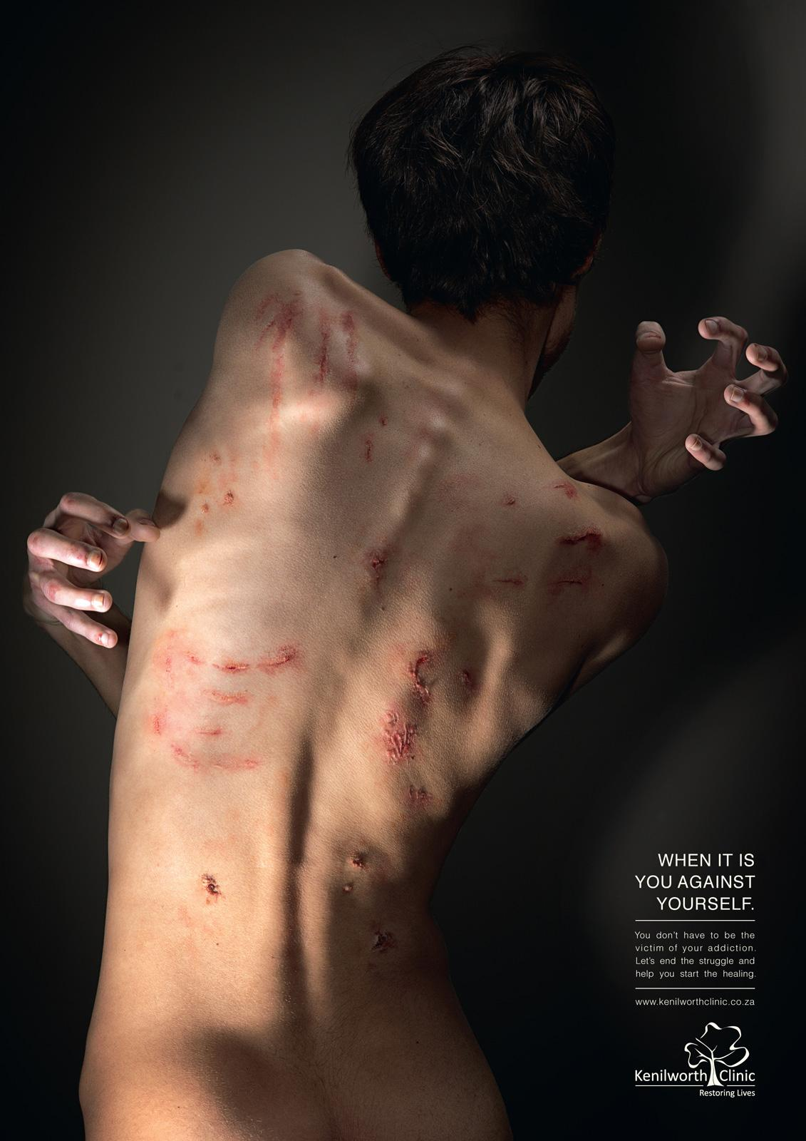 Kenilworth Clinic Print Ad -  Inner Struggle, Man